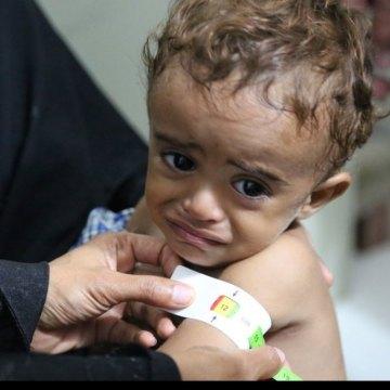 Yemen: UN, partners seek $2.1 billion to stave off famine in 2017