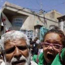 Yemen Desparately Needs Our Help - yemen people